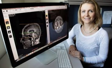Hacer ejercicio en la tercera edad ayuda a proteger la materia blanca cerebral