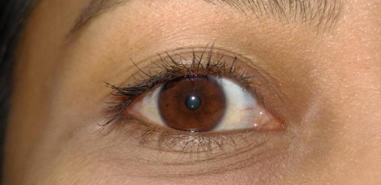 ¿Sabes reconocer las enfermedades comunes del ojo?