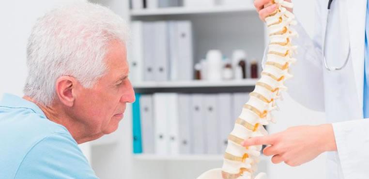 Todo lo que debe saber sobre la osteoporosis